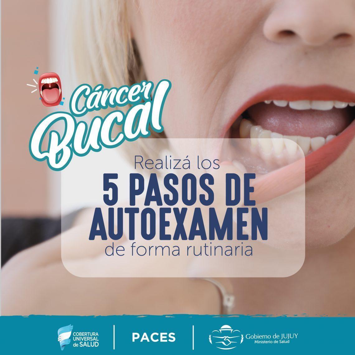 Prevención y control como respuesta al cáncer bucal